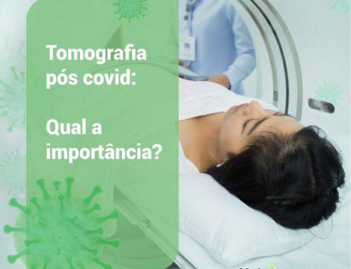 Tomografia pós Covid
